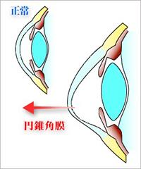 円錐角膜とは