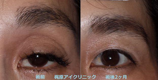 眼瞼下垂の手術の前後写真