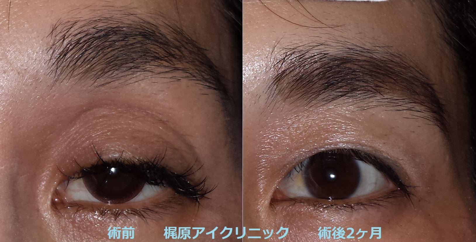 眼瞼下垂術後写真