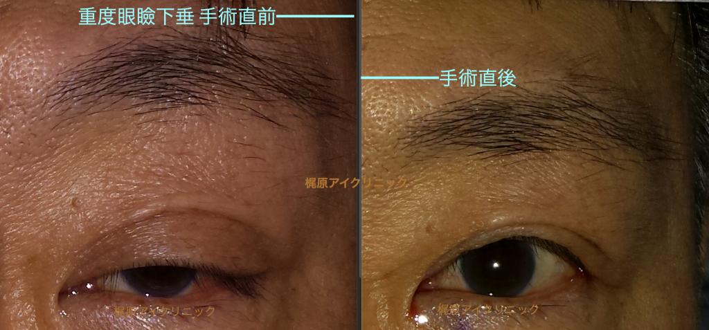 眼瞼下垂術前と直後画像(男性)