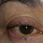 腱膜性眼瞼下垂