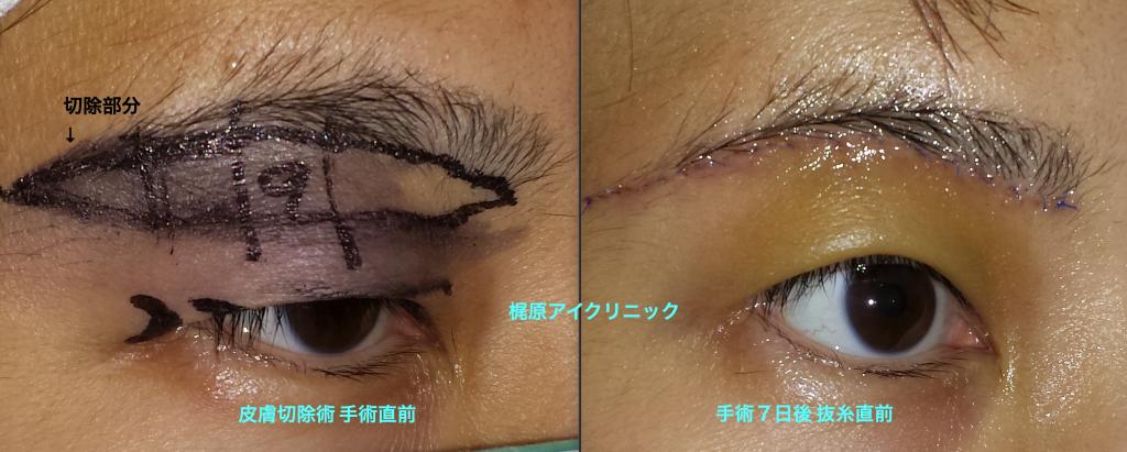 眉毛下皮膚切除の術前後