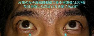 皮膚を切らない眼瞼下垂手術術直後写真