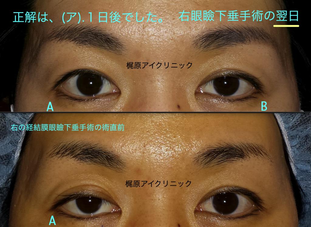 右眼瞼下垂手術翌日と直前比較