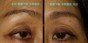眼瞼下垂症斜め像と正面像