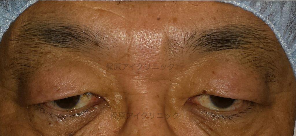 皮膚のたるみ中心