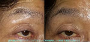 ハードコンタクトレンズ長期使用による眼瞼下垂